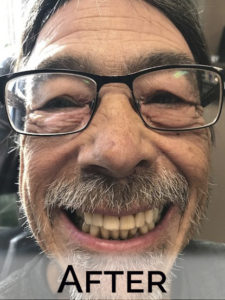 Happy client with new dentures by Denture Cottage