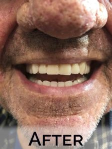 Bill close up with new dentures by Denture Cottage