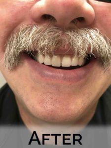 Darrin (close up) with new dentures by Denture Cottage