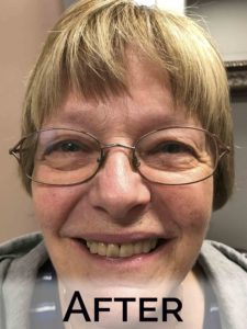 Donna with new dentures by Denture Cottage