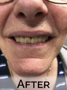 Donna Karle Close up with new dentrues by Denture Cottage
