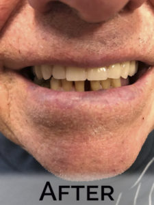 Happy client wearing new dentures by Denture Cottage