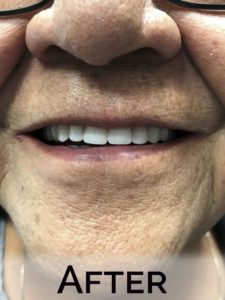 Martha (close up) with new dentures by Denture Cottage