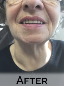 Mary with new dentures by Denture Cottage