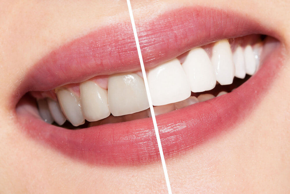before and aftert Teeth Whitening treatment